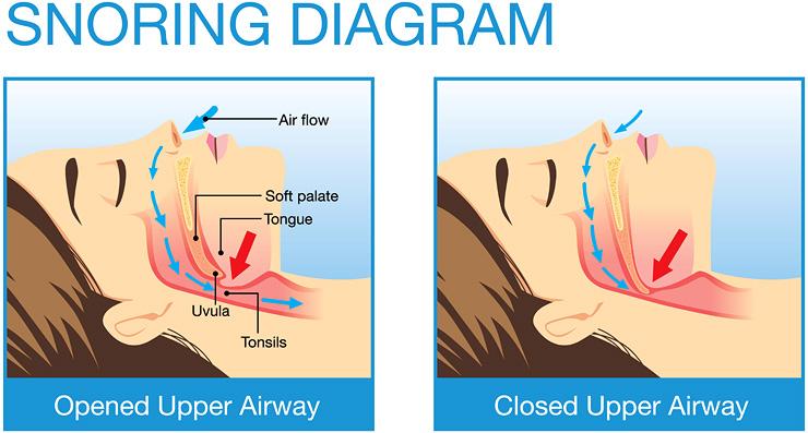 The Anatomy of Snoring Diagram